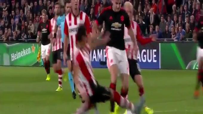 Luke Shaw, jovem defesa do Manchester United, lesionou-se na partida frente ao PSV, após entrada de Moreno. Um lance arrepiante, que deixa antever gravidade na lesão.